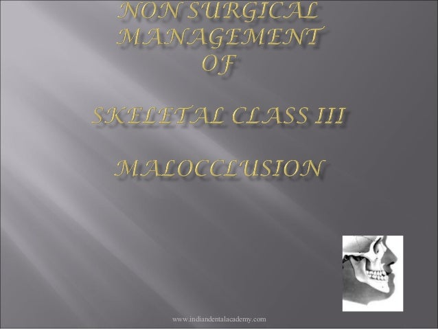 Non surgical management of Class 3 malooclusion /certified fixed orthodontic courses by Indian dental academy