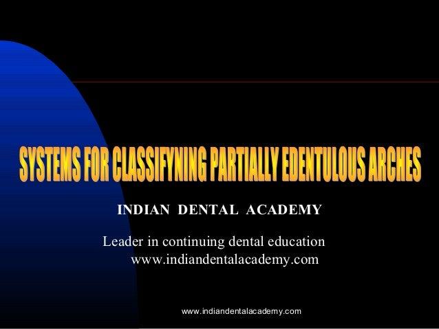 Classification of  rpd / dentist laboratory