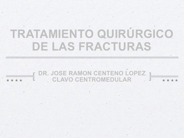 TRATAMIENTO QUIRÚRGICO   DE LAS FRACTURAS   DR. JOSE RAMON CENTENO LOPEZ       CLAVO CENTROMEDULAR