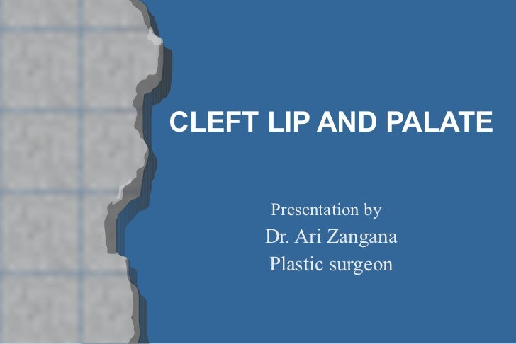 CLEFT LIP AND PALATE Presentation by  Dr. Ari Zangana Plastic surgeon