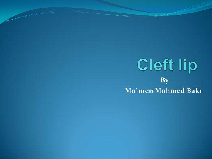 ByMo`men Mohmed Bakr