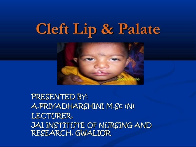 Cleft Lip & PalatePRESENTED BY:A.PRIYADHARSHINI M.Sc (N)LECTURER,JAI INSTITUTE OF NURSING ANDRESEARCH, GWALIOR