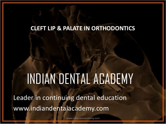 CLEFT LIP & PALATE IN ORTHODONTICS  INDIAN DENTAL ACADEMY Leader in continuing dental education www.indiandentalacademy.co...