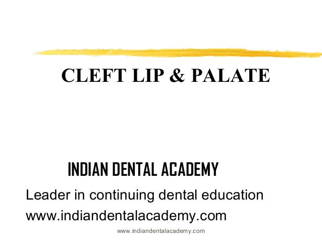 CLEFT LIP & PALATE  INDIAN DENTAL ACADEMY Leader in continuing dental education www.indiandentalacademy.com www.indiandent...