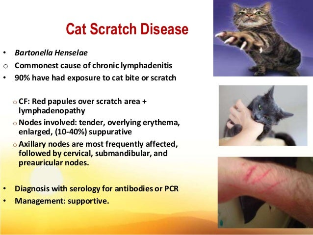 What Causes Cat Scratch Fever In Humans