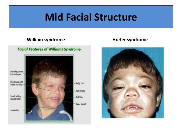 Hurler Syndrome Symptoms