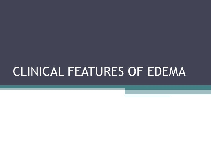 Clinical features of edema