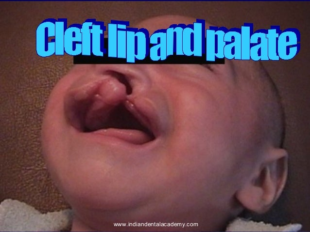 Cleft lip and palate /certified fixed orthodontic courses by Indian dental academy