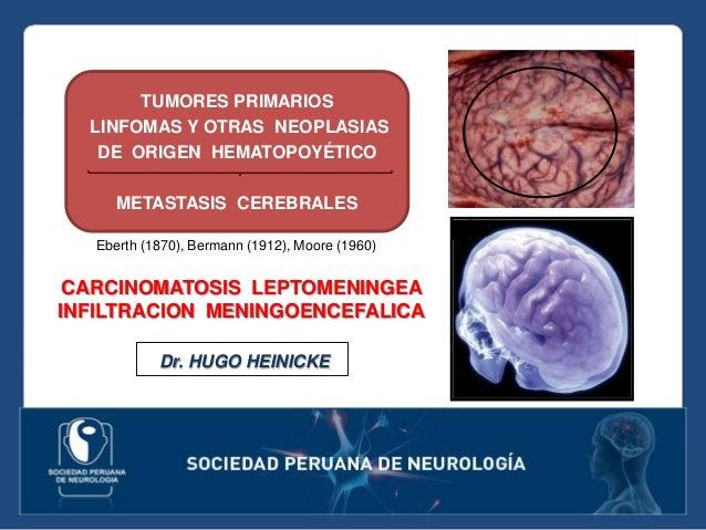TUMORES PRIMARIOS LINFOMAS Y OTRAS NEOPLASIAS DE ORIGEN HEMATOPOYÉTICO METASTASIS CEREBRALES CARCINOMATOSIS LEPTOMENINGEA ...