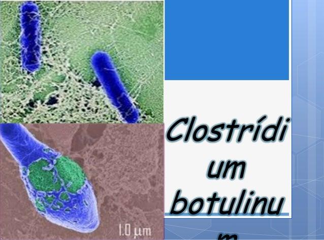 Clostrídiumbotulinu