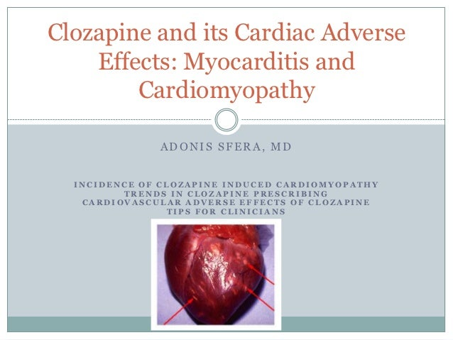 Clozapine and its Cardiac Adverse    Effects: Myocarditis and        Cardiomyopathy              ADONIS SFERA, MD  INCIDEN...