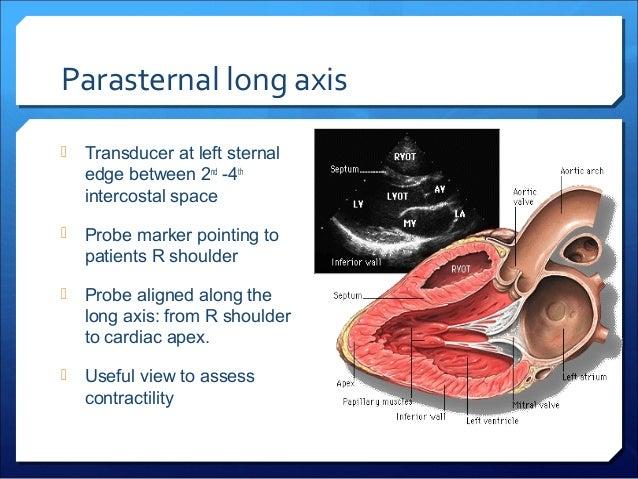 Intercostal space anatomy
