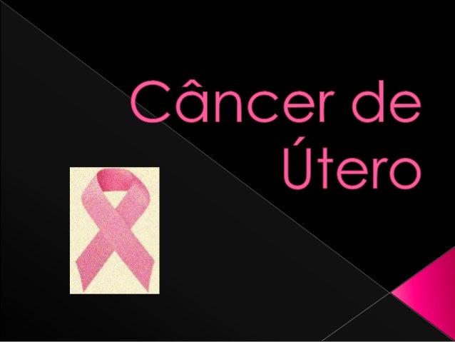  O que é :  O câncer de útero, também chamado de câncer de endométrio, é o segundo mais frequente e geralmente aparece e...