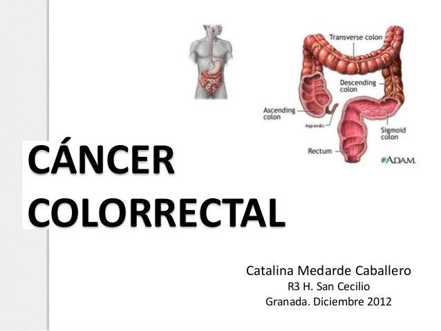 CÁNCERCOLORRECTAL         Catalina Medarde Caballero                R3 H. San Cecilio            Granada. Diciembre 2012