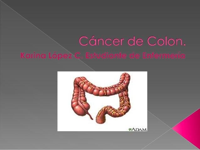 Crecimiento incontrolado y anómalo de células cancerosas en el Recto y Colon, las cuales tienen la capacidad de invadir ot...