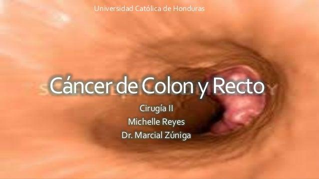 CáncerdeColonyRecto Cirugía II Michelle Reyes Dr. Marcial Zúniga Universidad Católica de Honduras