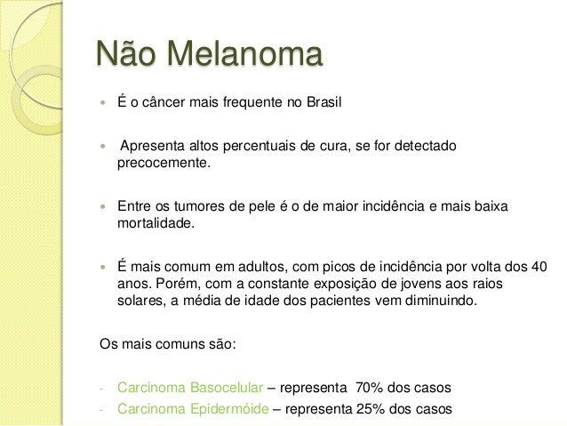 Melanoma – Vikipedija