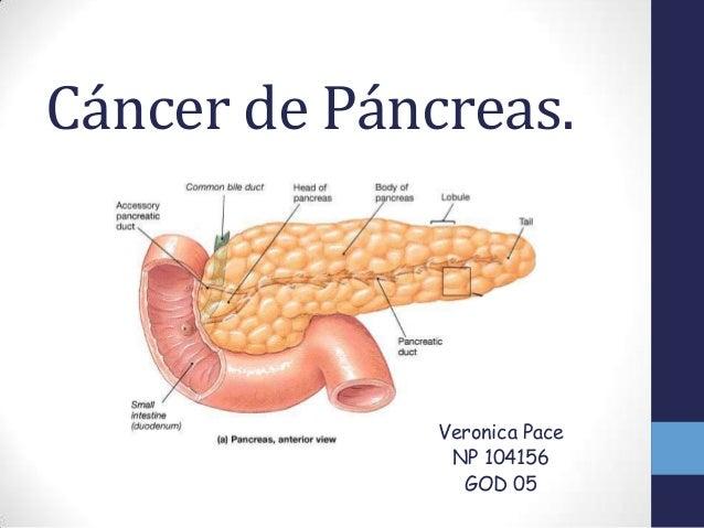 pancreas tumore