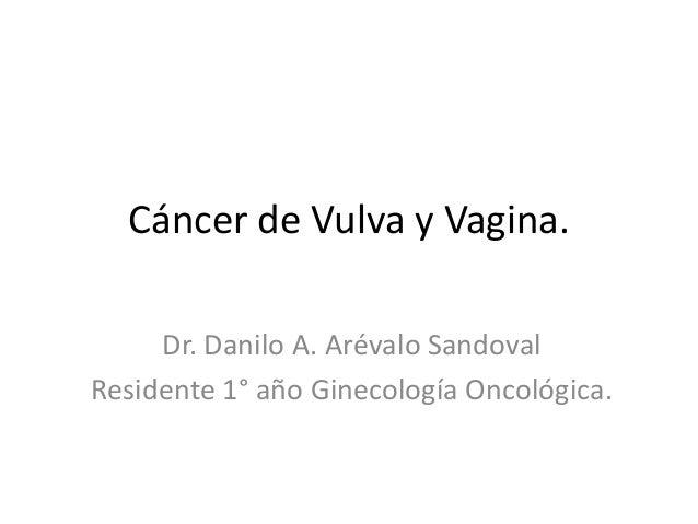 Cáncer de Vulva y Vagina. Dr. Danilo A. Arévalo Sandoval Residente 1° año Ginecología Oncológica.