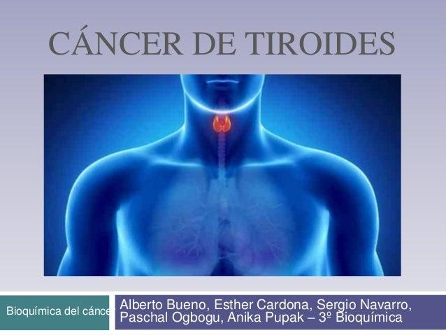 CÁNCER DE TIROIDES Alberto Bueno, Esther Cardona, Sergio Navarro, Paschal Ogbogu, Anika Pupak – 3º Bioquímica Bioquímica d...