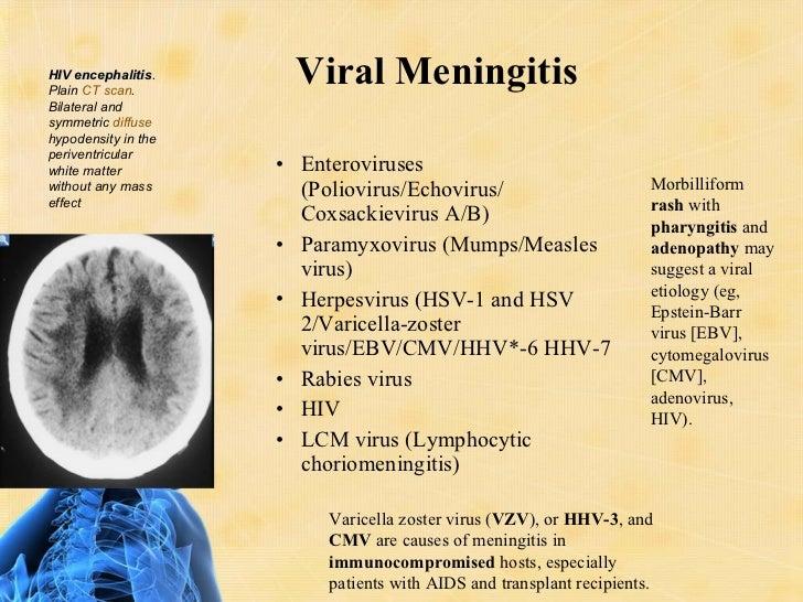 enterovirus acyclovir