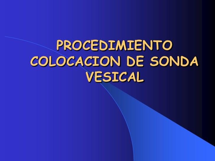 Colocacion Sonda Vesical
