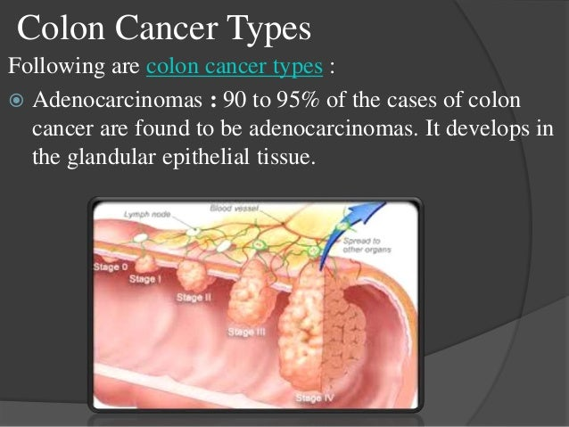 treatment of cancer Cervical cancer is a cancer arising from the cervix it is due to the abnormal growth of cells that have the ability to invade or spread to other parts of the body.