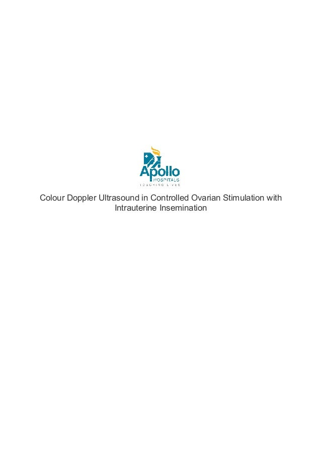 Colour Doppler ultrasound in controlled ovarian stimulation with Intrauterine Insemination