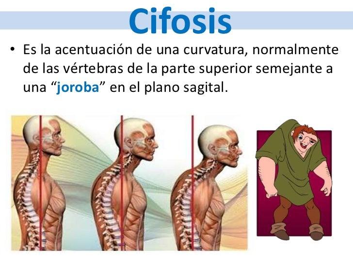 Que puede estar enfermo del lado izquierdo por parte de la espalda