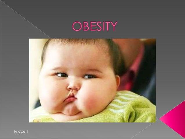 Obesity - Dieases caused by Obesity - Focusing on Diabetes.