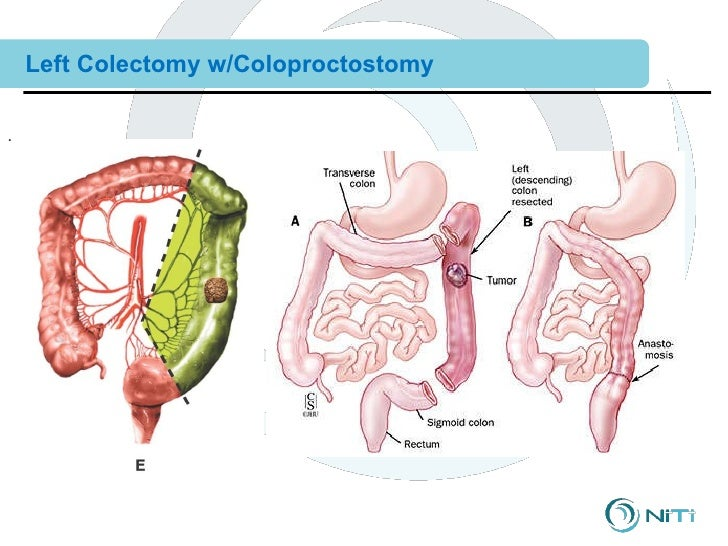 post sigmoid coletomy care Hi annie-marie, i had a sigmoid colectomy nearly two years ago for diverticular disease i too spent most of my day confined to the bathroom and was in constant pain.