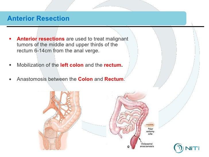 anterior resectie