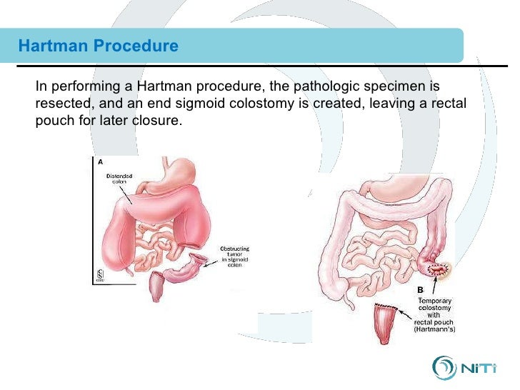 Hartmann Operation Combined 12 clinical training--surgical procedures