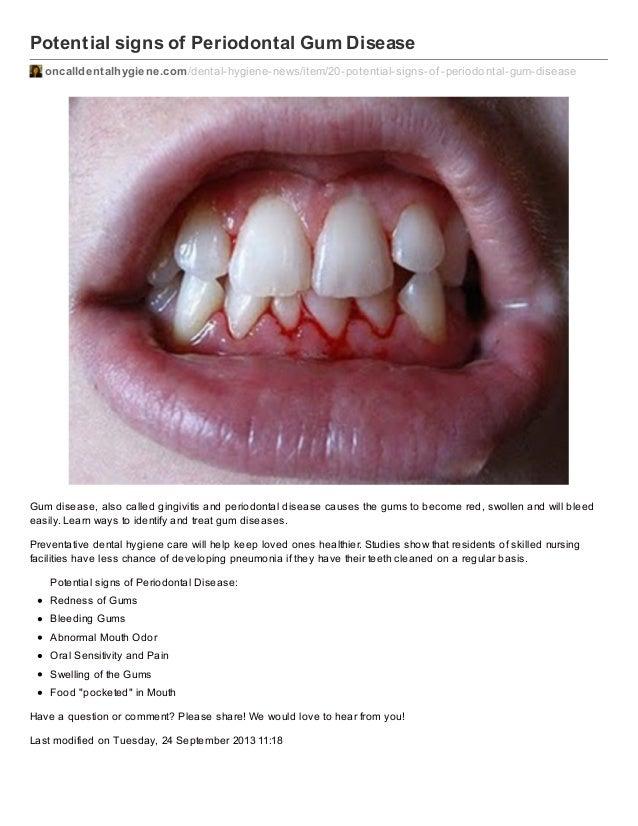 Potential signs of Periodontal Gum Disease oncalldentalhygiene.com /dental-hygiene-news/item/20-potential-signs-of -period...