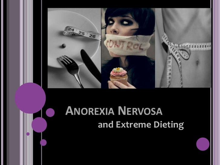 ANOREXIA NERVOSA     and Extreme Dieting