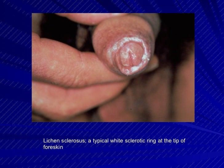White Skin Penis 111