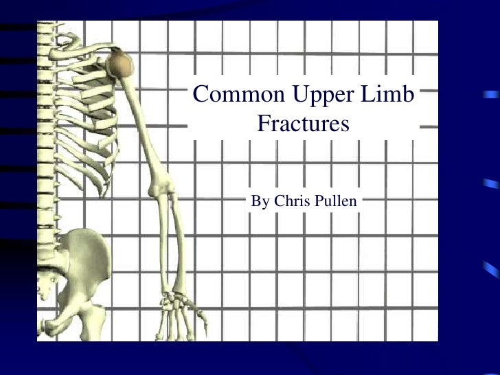 Common Upper Limb<br />Fractures<br />By Chris Pullen<br />