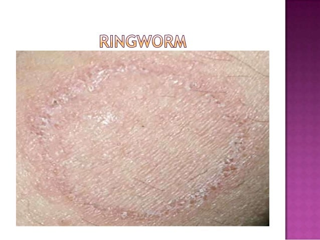 5 Most Common Skin Disorders | Fox News