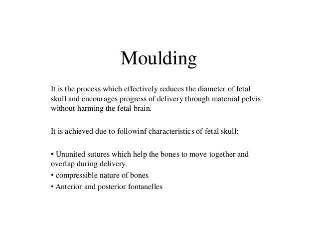 Fetal Skull Moulding Fetal Skull And Encourages