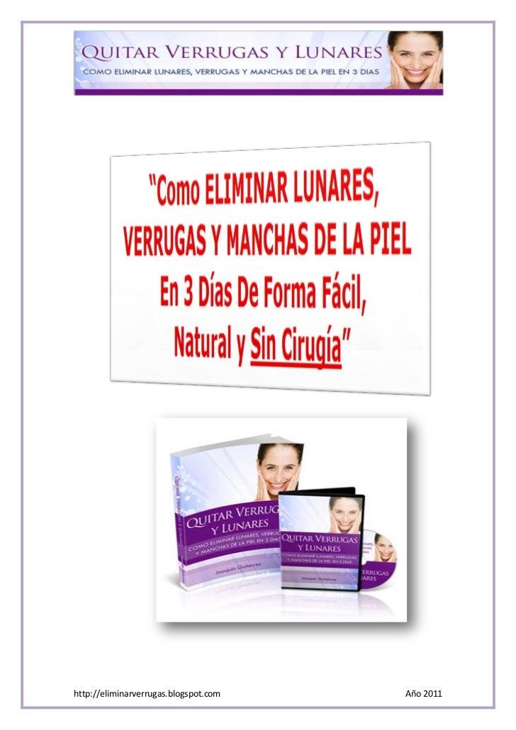 http://eliminarverrugas.blogspot.com   Año 2011
