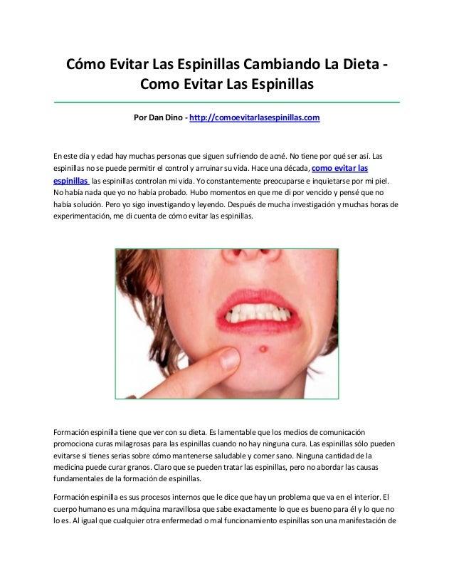 Cómo Evitar Las Espinillas Cambiando La Dieta -Como Evitar Las Espinillas_________________________________________________...