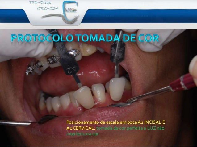 Posicionamento da escala em boca A1 INCISAL EA2 CERVICAL; tomada de cor perfeita a LUZ nãointerferiu na cor