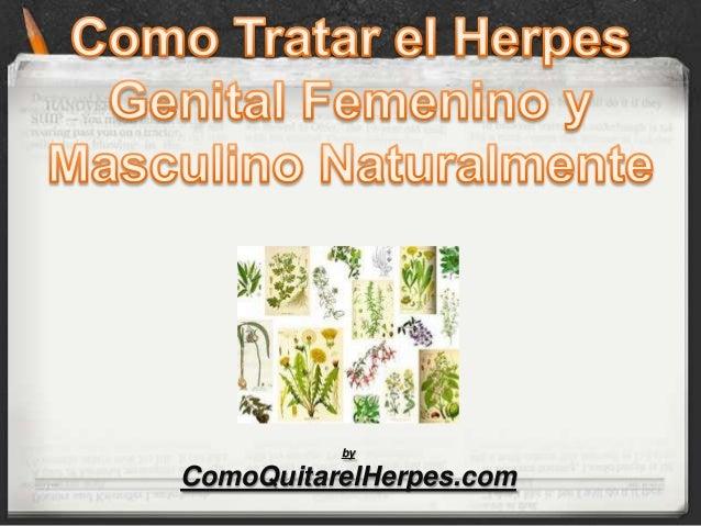 by ComoQuitarelHerpes.com