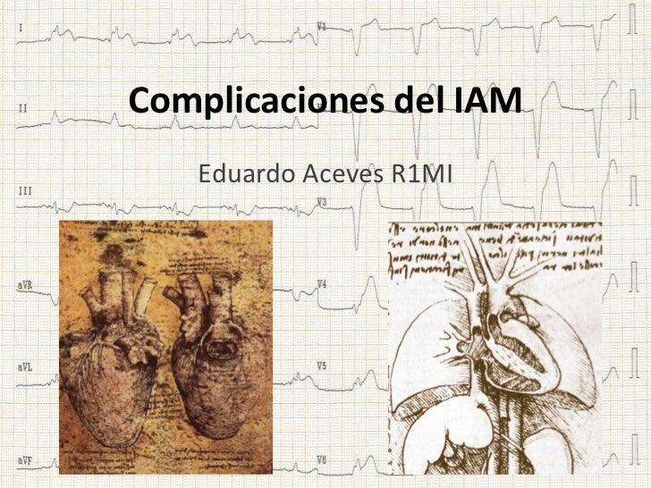 Complicaciones del IAM   Eduardo Aceves R1MI