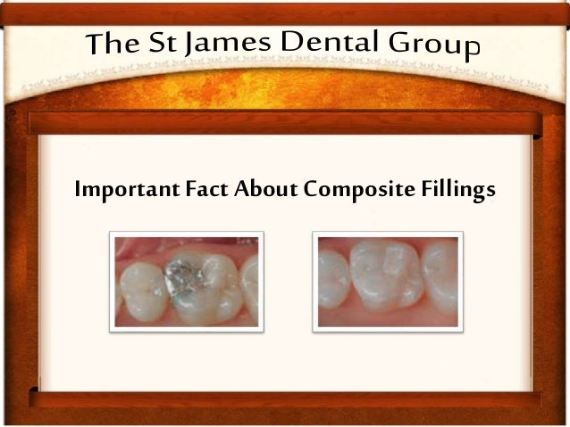 Facts About Composite Fillings