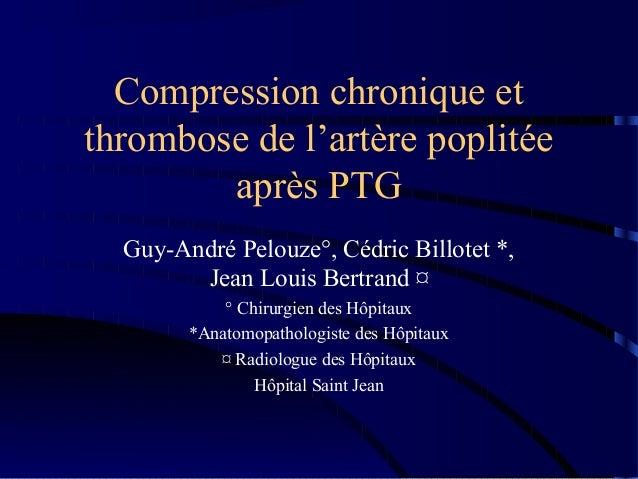 Compression chronique etthrombose de l'artère poplitée        après PTG  Guy-André Pelouze°, Cédric Billotet *,        Jea...
