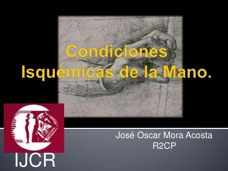 José Oscar Mora Acosta               R2CPIJCR