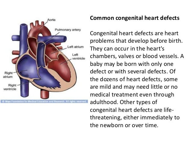 Common congenital heart defects Congenital heart defects are heart problems that develop before birth. They can occur in t...