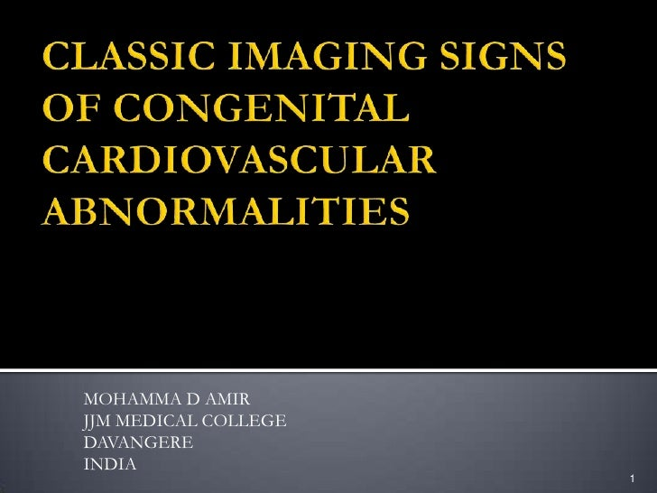 CLASSIC IMAGING SIGNS OF CONGENITAL CARDIOVASCULAR ABNORMALITIES<br />MOHAMMA D AMIR<br />JJM MEDICAL COLLEGE<br />DAVANGE...