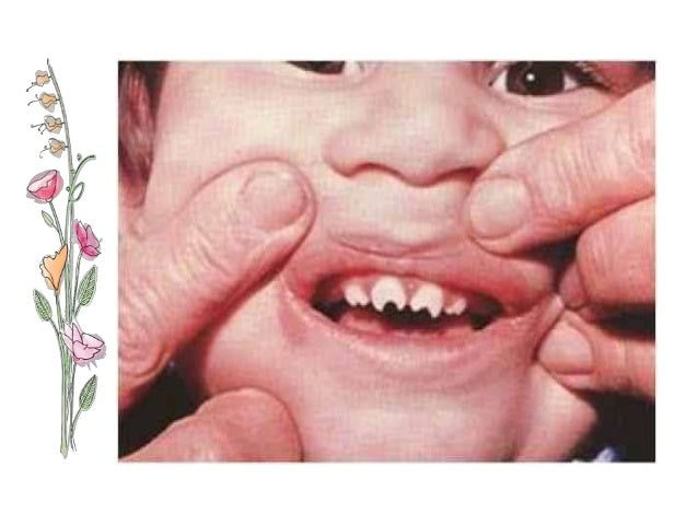 Pics For Gt Congenital Syphilis Baby
